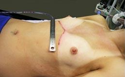 Pectus Carinatum pós-operatório