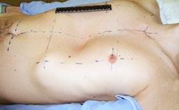 Pectus Mixto pré-operatório