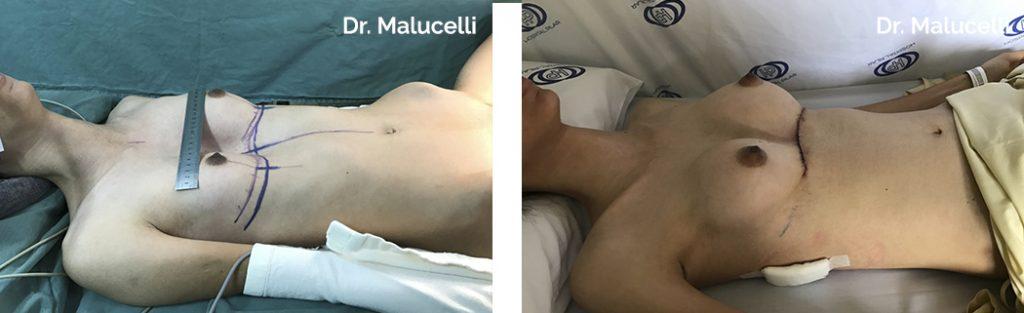 P. Excavatum + Aumento do volume das cabeças das clavículas + Elevação do manúbrio esternal + Mamas pequenas e com ptose (abaixamento) de mamas + Elevação dos rebordos costais (transição entre o tórax e o abdomem)