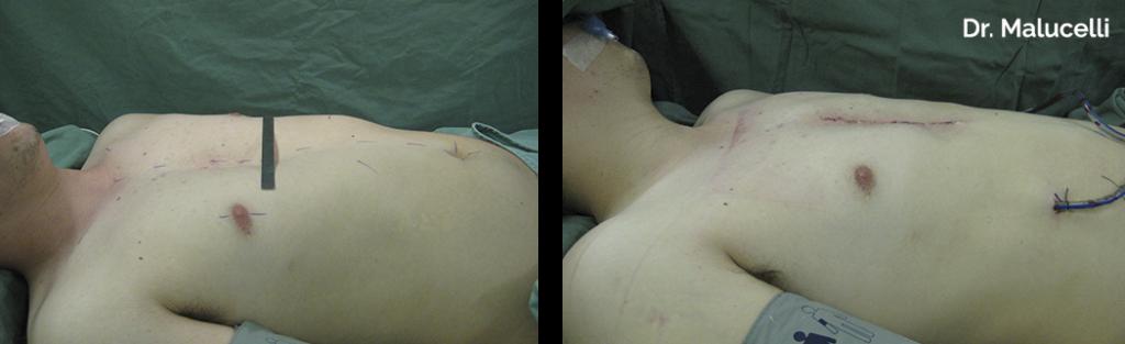 Cirurgia Pectus Mixto